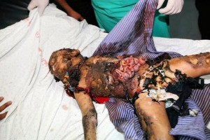 Victim of recent Israeli offensive. Click to enlarge