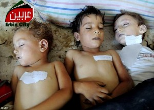 Alleged victims of 'the gas attack in Damascus', not in the foetal position.