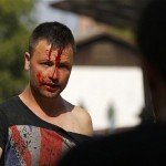 Migrant injured after clash. Click to enlarge