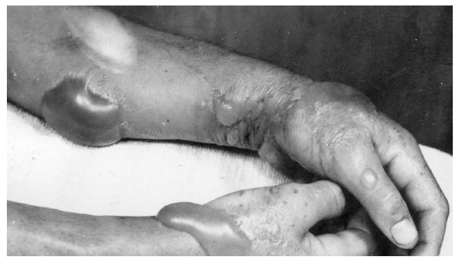 Mustard gas burns. Click to enlarge
