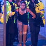 Injured helped away from the scene of the Manchester blast. Click to enlarge