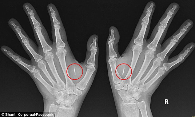 Some Swedish companies have begun implant employees with microchips.