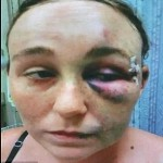 Florida woman claims cops arrested her on bogus charges and savagely beat her...