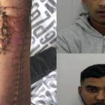 """20 Non-Whites Attack """"White Bastards"""" – British Teen's Hand Cut Off with Ax"""