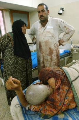 A wounded Iraqi girl Monday April,7. 2003 lays in a in hospital bed after being brought by her family to one of Baghdad's surgery hospital. The girl was wounded during a coalition attack on the al-Rashidiya area in the outskirts of Baghdad. (AP Photo/Ali Haider).